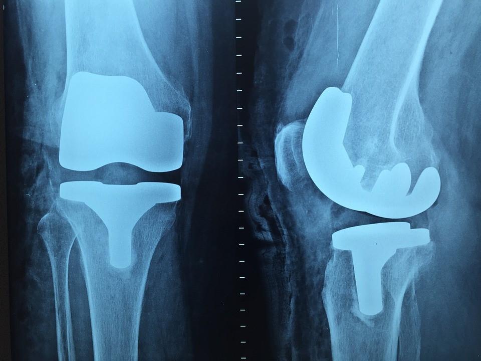 Etapes d'une pose de prothese de genou